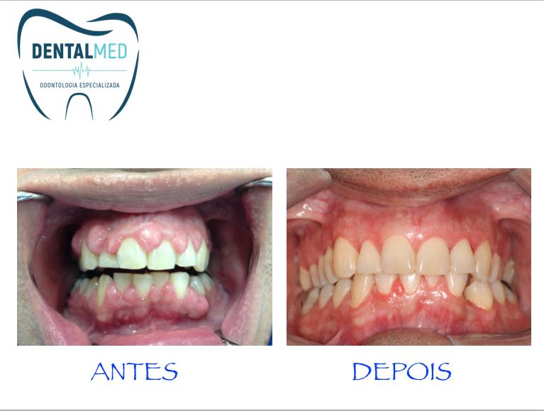 Hiperplasia gengival - site Dental Mend Odontologia